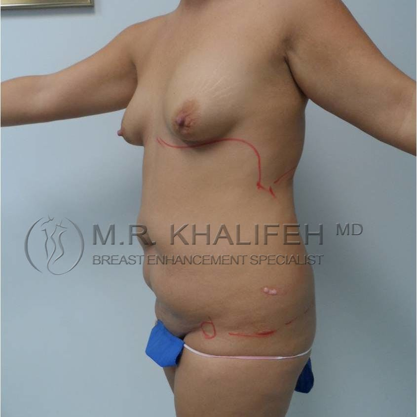 Breast Lift Gallery - Patient 3762025 - Image 3