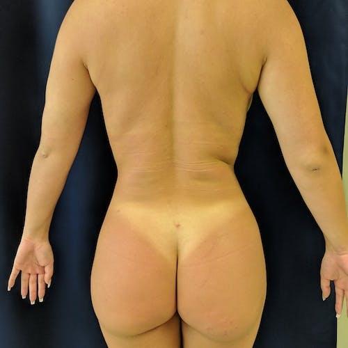 Midback-Bra Line Lipo Gallery - Patient 3762024 - Image 2