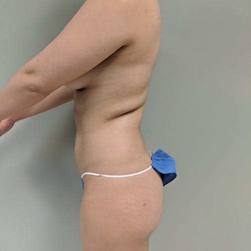 Midback-Bra Line Lipo Gallery - Patient 3762024 - Image 3
