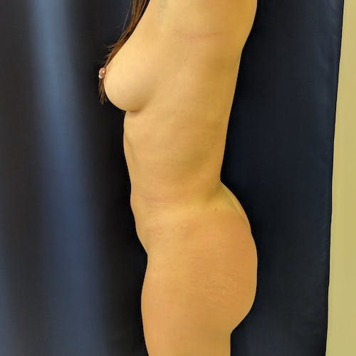 Midback-Bra Line Lipo Gallery - Patient 3762024 - Image 4