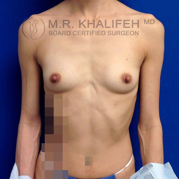 Breast Augmentation Gallery - Patient 3762026 - Image 1