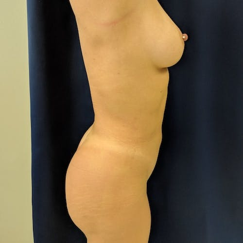 Midback-Bra Line Lipo Gallery - Patient 3762024 - Image 6