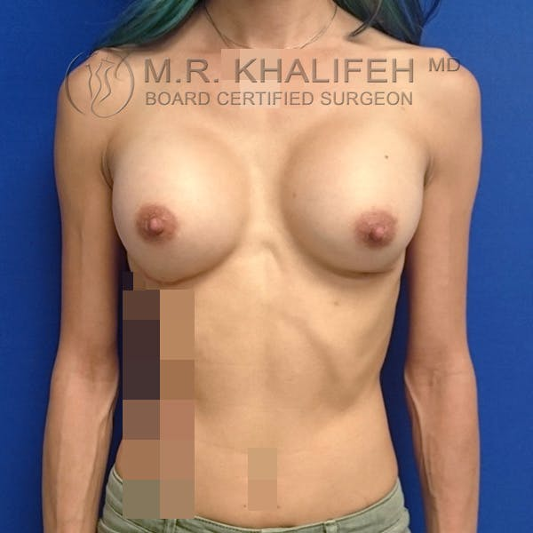 Breast Augmentation Gallery - Patient 3762026 - Image 2