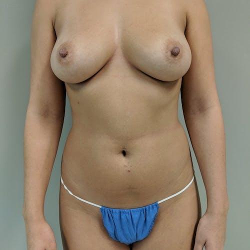 Midback-Bra Line Lipo Gallery - Patient 3762024 - Image 7