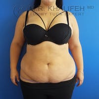 Tummy Tuck Gallery - Patient 3762030 - Image 1
