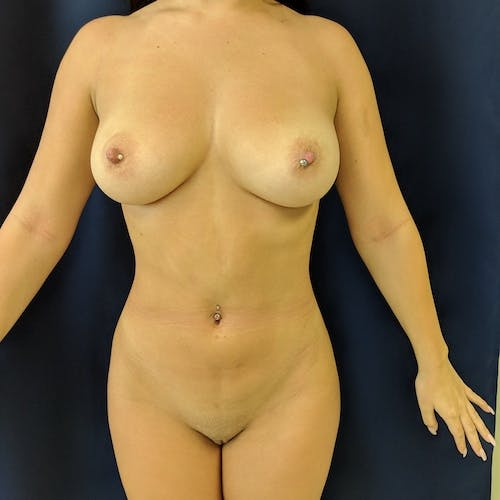 Midback-Bra Line Lipo Gallery - Patient 3762024 - Image 8
