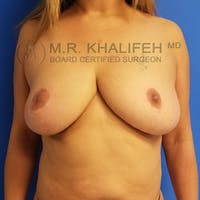 Breast Reduction Gallery - Patient 3762028 - Image 1