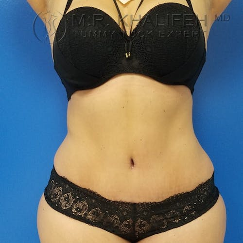 Tummy Tuck Gallery - Patient 3762030 - Image 2