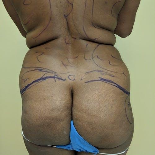 Midback-Bra Line Lipo Gallery - Patient 3762027 - Image 1