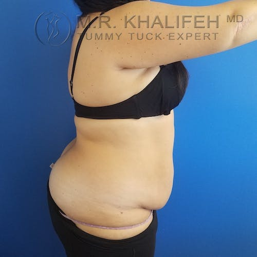 Tummy Tuck Gallery - Patient 3762030 - Image 5