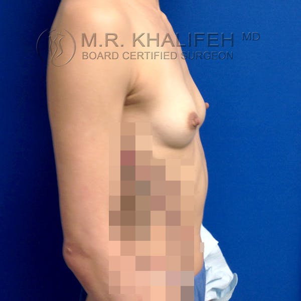 Breast Augmentation Gallery - Patient 3762026 - Image 7