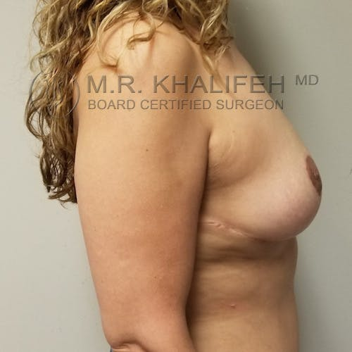 Breast Reduction Gallery - Patient 3762028 - Image 6