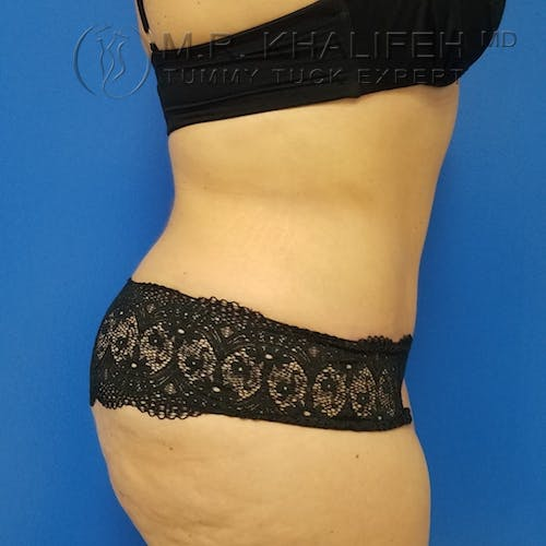 Tummy Tuck Gallery - Patient 3762030 - Image 6