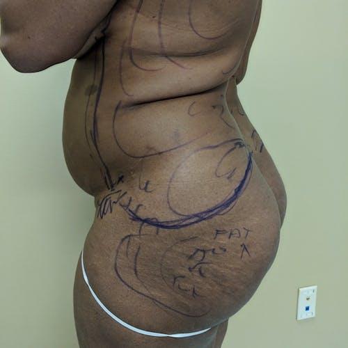 Midback-Bra Line Lipo Gallery - Patient 3762027 - Image 5