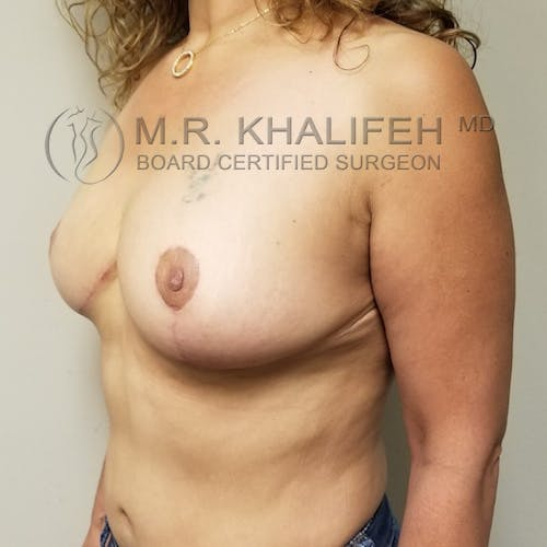 Breast Reduction Gallery - Patient 3762028 - Image 8