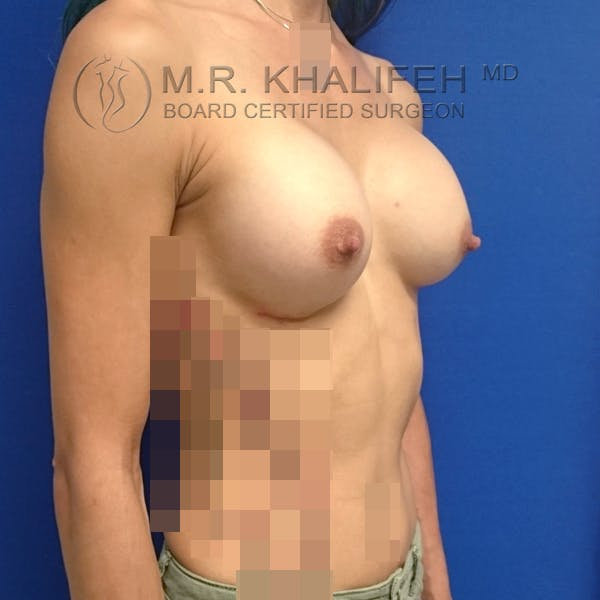Breast Augmentation Gallery - Patient 3762026 - Image 10