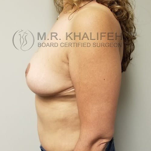Breast Reduction Gallery - Patient 3762028 - Image 10