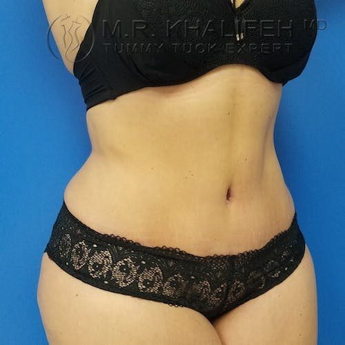Tummy Tuck Gallery - Patient 3762030 - Image 9