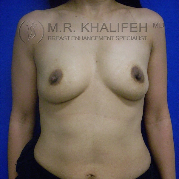 Breast Augmentation Gallery - Patient 3762034 - Image 1