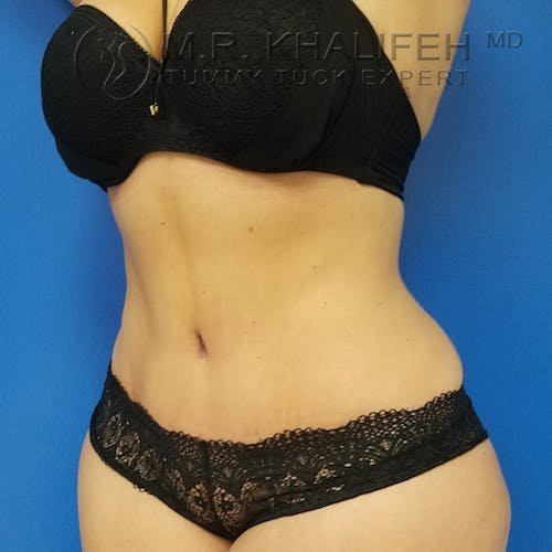 Tummy Tuck Gallery - Patient 3762030 - Image 10