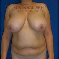 Breast Lift Gallery - Patient 3762033 - Image 1