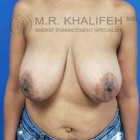 Breast Reduction Gallery - Patient 3762036 - Image 1