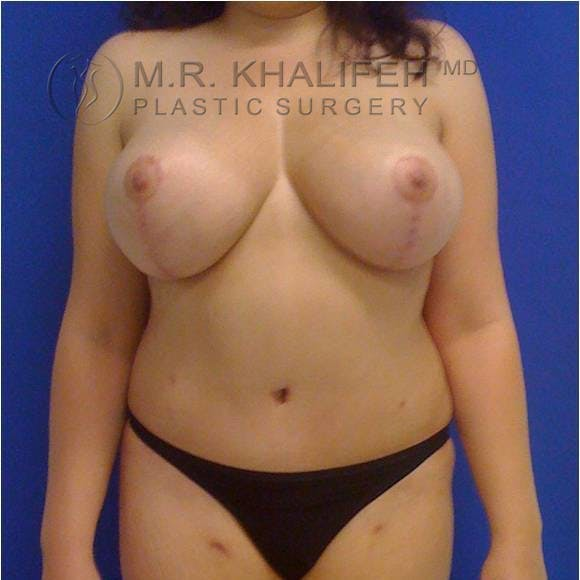 Breast Lift Gallery - Patient 3762033 - Image 2