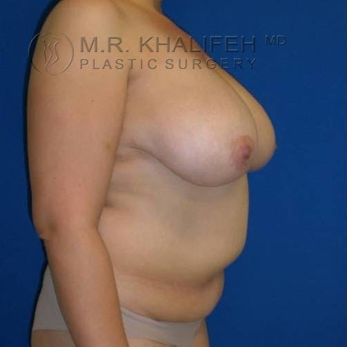 Breast Lift Gallery - Patient 3762033 - Image 3