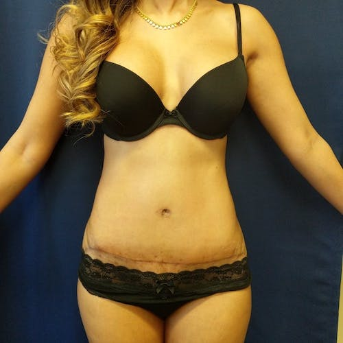 Tummy Tuck Gallery - Patient 3762031 - Image 2
