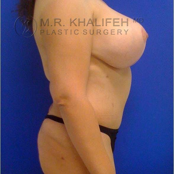 Breast Lift Gallery - Patient 3762033 - Image 4