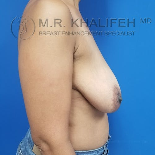 Breast Reduction Gallery - Patient 3762036 - Image 5