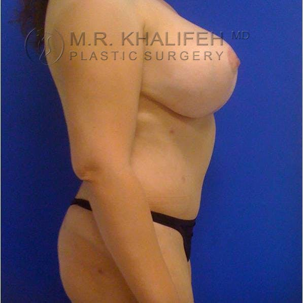 Breast Lift Gallery - Patient 3762033 - Image 6