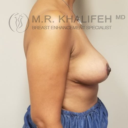 Breast Reduction Gallery - Patient 3762036 - Image 6