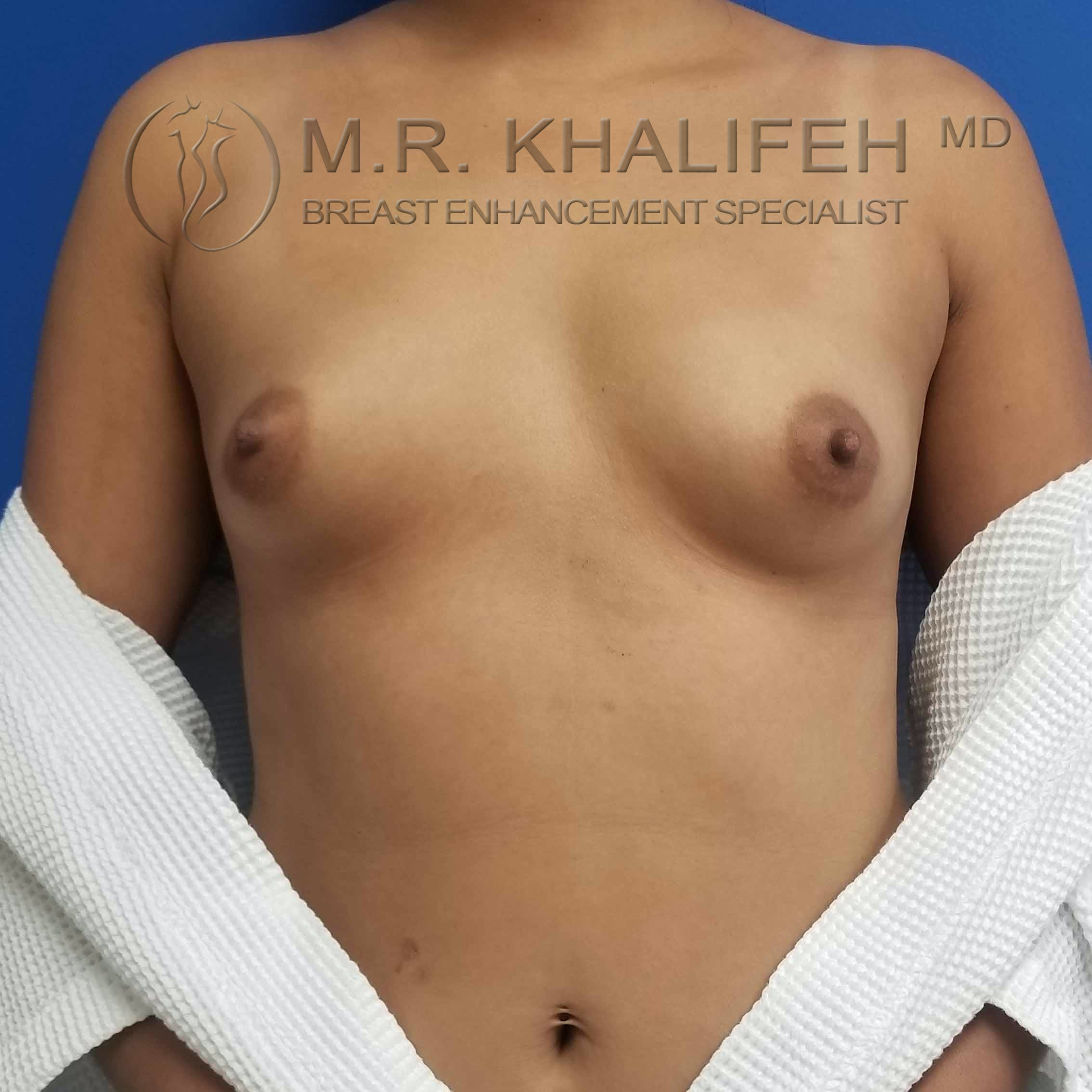 Breast Augmentation Gallery - Patient 3762044 - Image 1