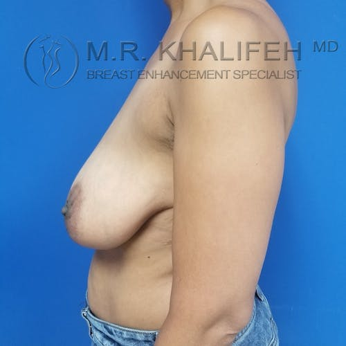 Breast Reduction Gallery - Patient 3762036 - Image 9