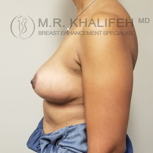 Breast Reduction Gallery - Patient 3762036 - Image 10