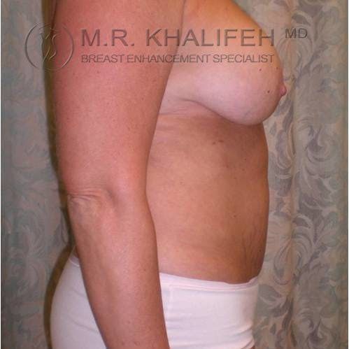 Breast Lift Gallery - Patient 3762038 - Image 3