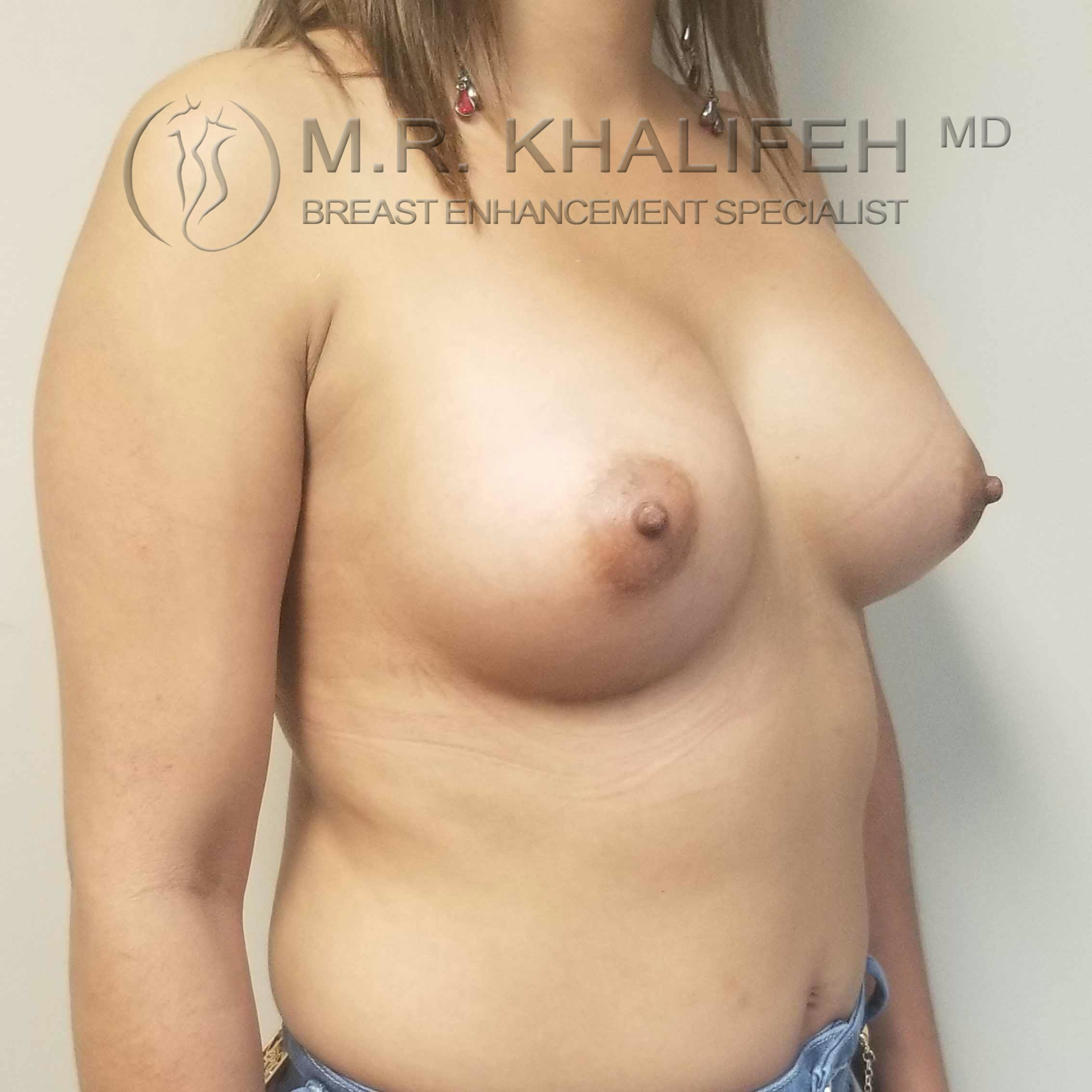 Breast Augmentation Gallery - Patient 3762044 - Image 4