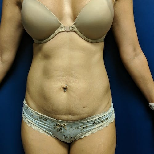 Tummy Tuck Gallery - Patient 3762041 - Image 1