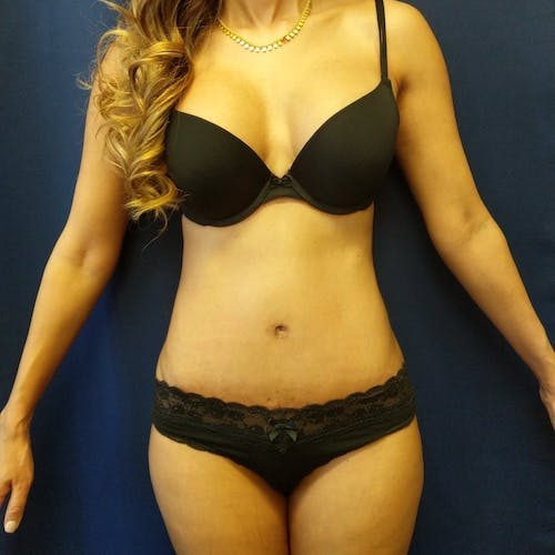 Tummy Tuck Gallery - Patient 3762041 - Image 2