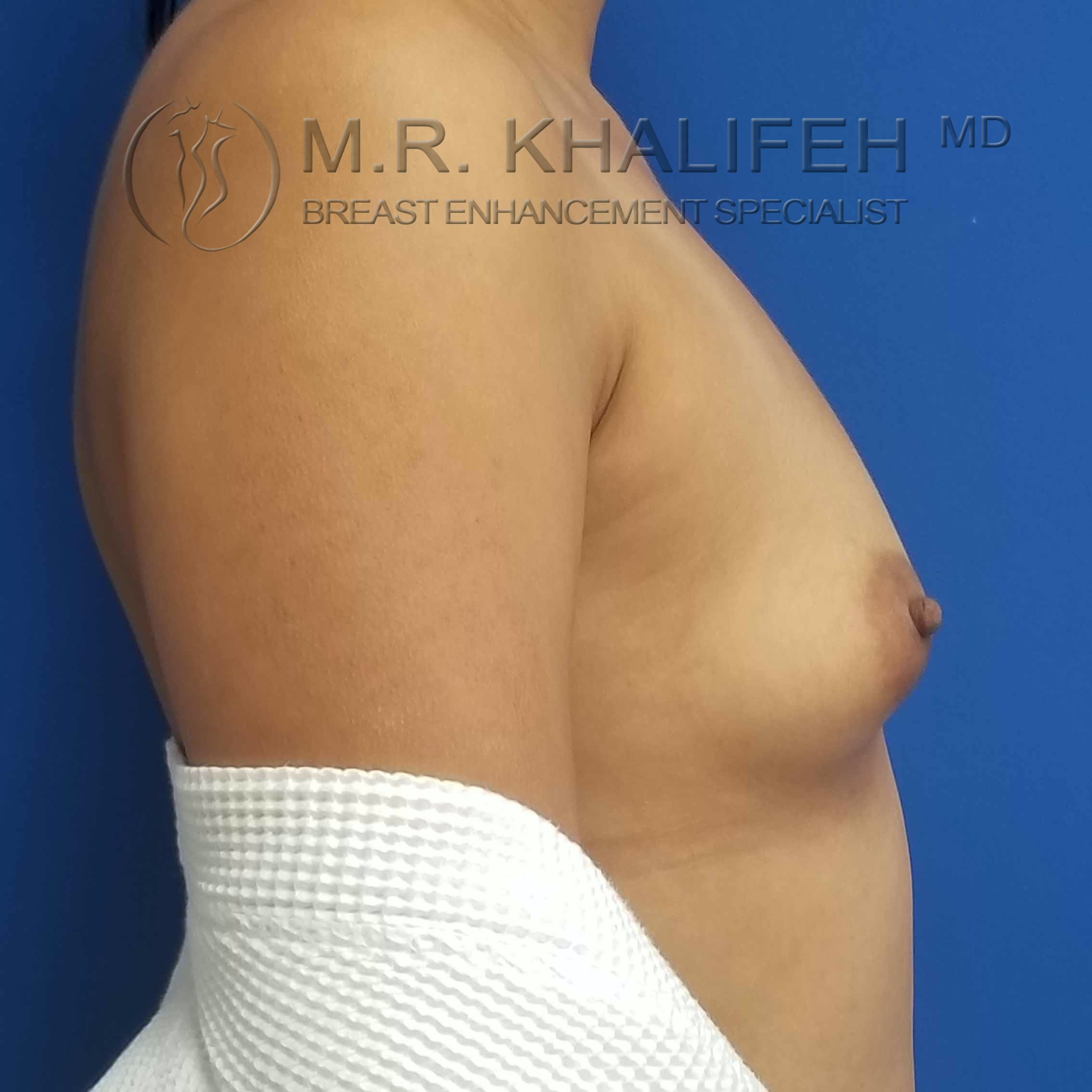 Breast Augmentation Gallery - Patient 3762044 - Image 5