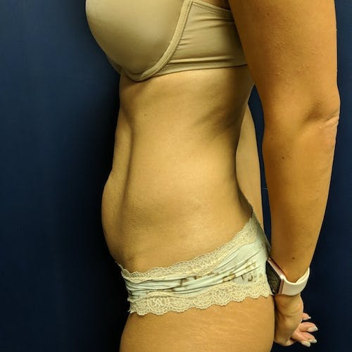 Tummy Tuck Gallery - Patient 3762041 - Image 3