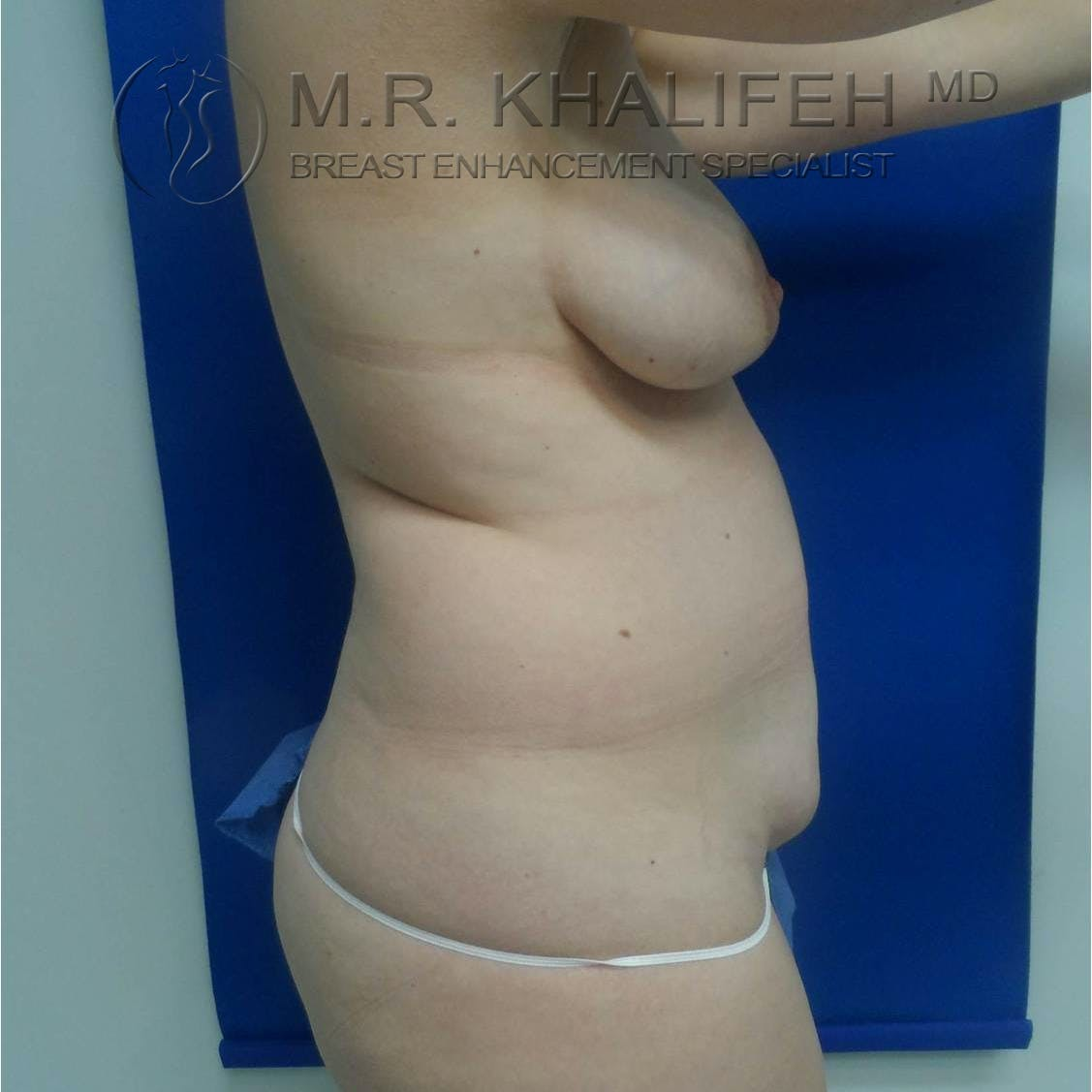 Breast Lift Gallery - Patient 3762042 - Image 3