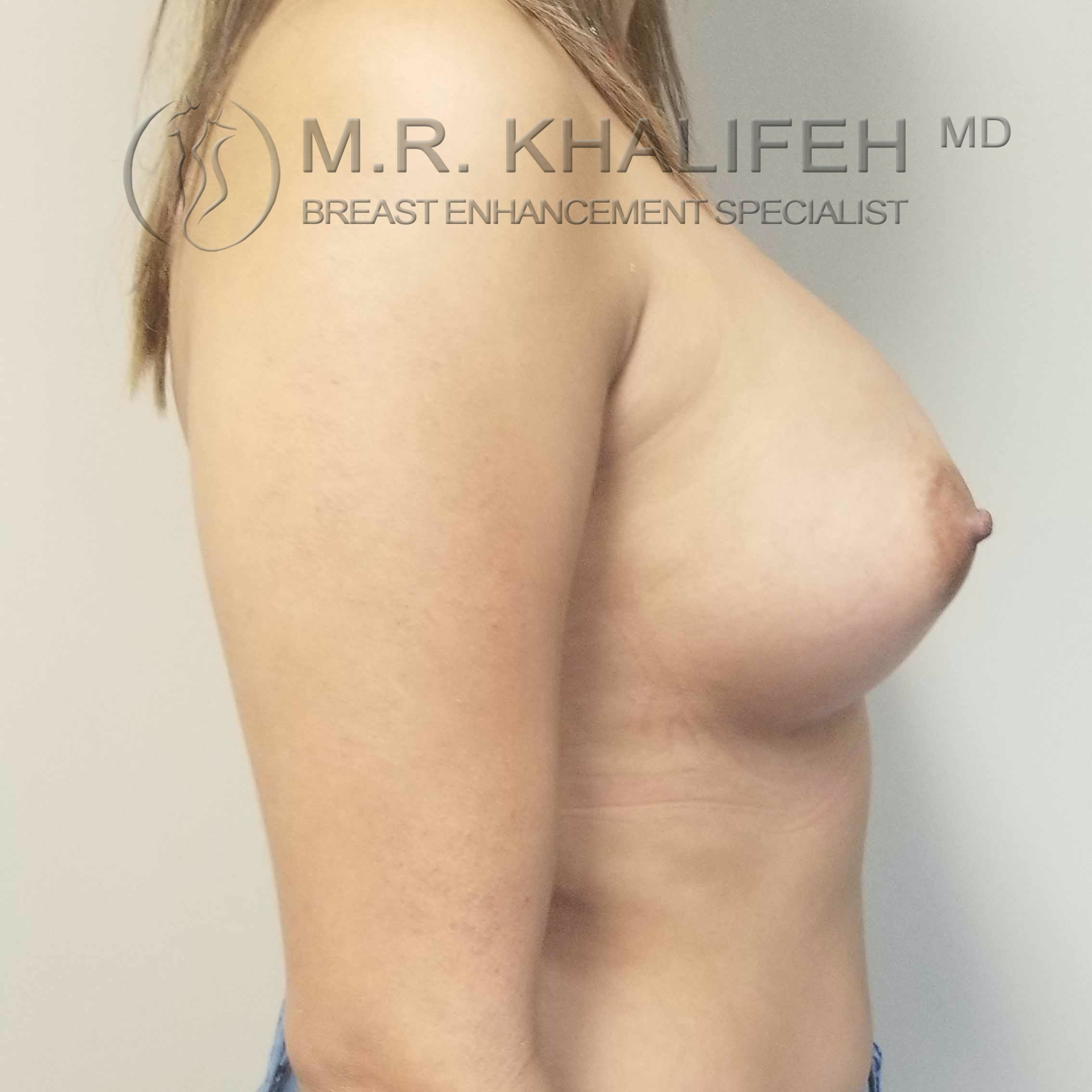 Breast Augmentation Gallery - Patient 3762044 - Image 6