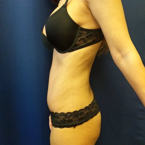 Tummy Tuck Gallery - Patient 3762041 - Image 4