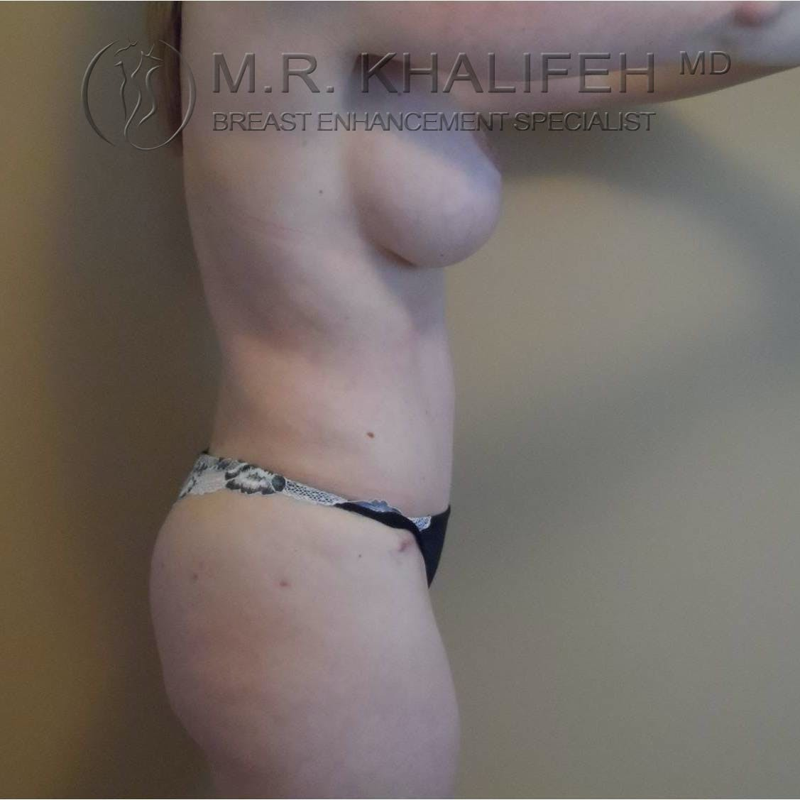 Breast Lift Gallery - Patient 3762042 - Image 4