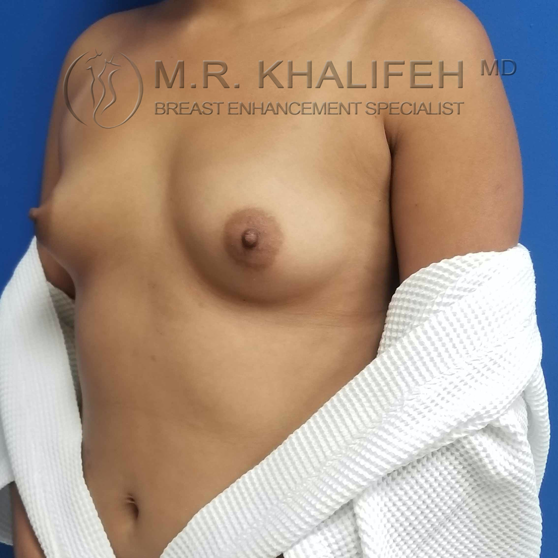 Breast Augmentation Gallery - Patient 3762044 - Image 7