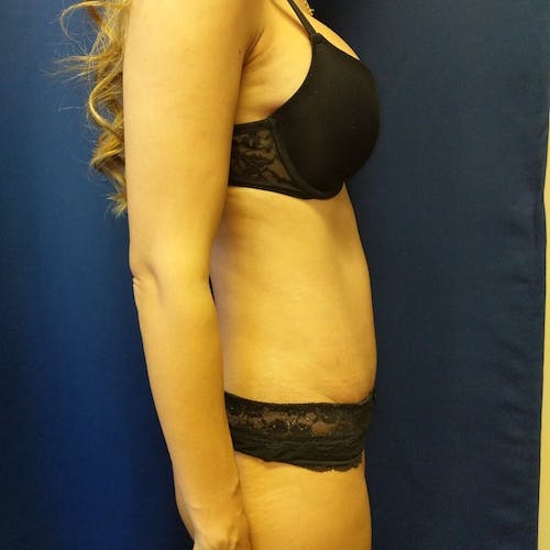Tummy Tuck Gallery - Patient 3762041 - Image 6
