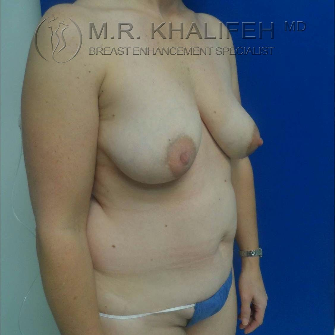 Breast Lift Gallery - Patient 3762042 - Image 5