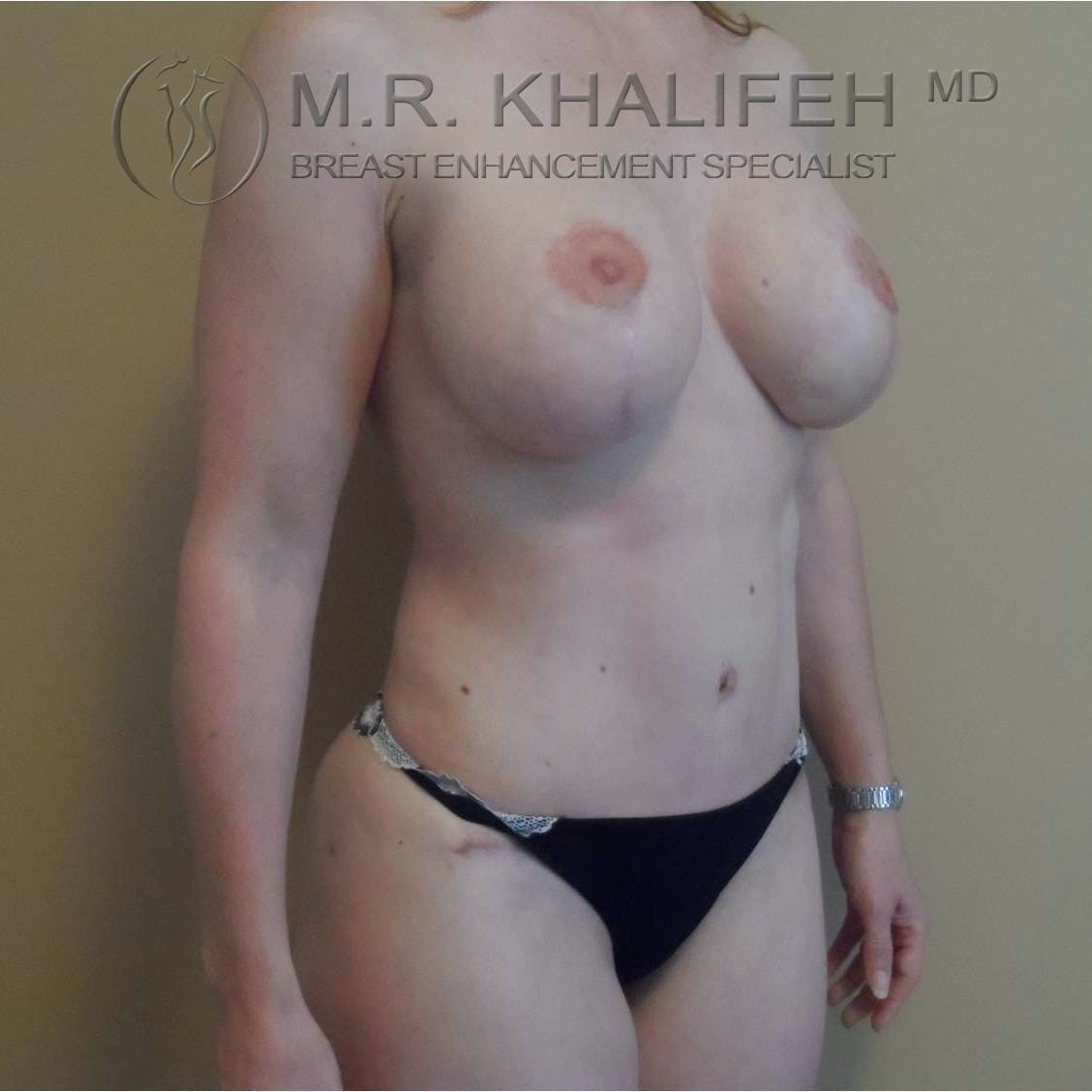 Breast Lift Gallery - Patient 3762042 - Image 6
